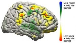 BCI-brain-image-300x168